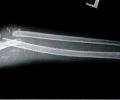 Linsentrübung und Unterarmfraktur